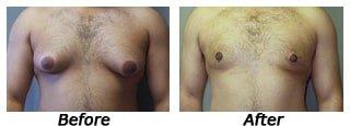 What is gynecomastia, What are man boobs Image of Male Breast Correction in Kolkata - Dr. Goutam Guha